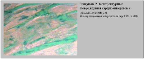 контрактурные повреждения кардиомиоцитов II – III порядка, феномен гиперрелаксации саркомеров