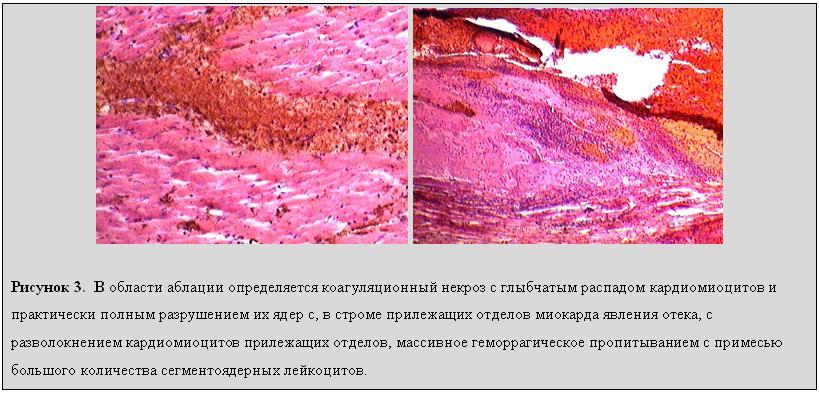 Диффузный кардиосклероз мкб